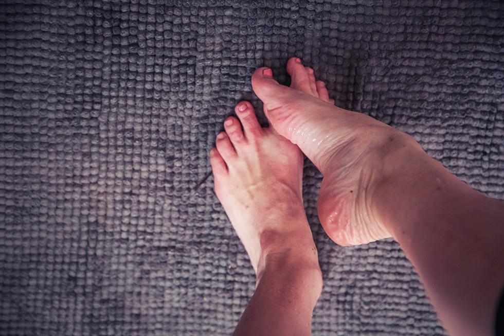 fjällar på fötterna